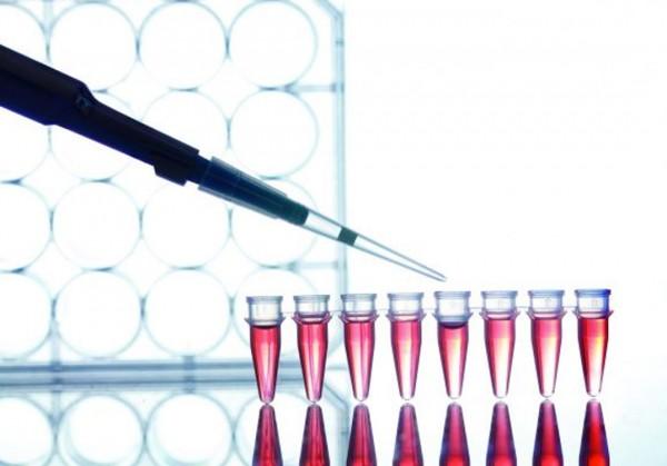 Tem sido recomendada a dosagem seriada da PCR em intervalos de tempo variáveis